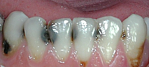 bottom Dental cavity